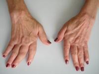 que-es-la-artritis