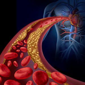 colesterol sangre